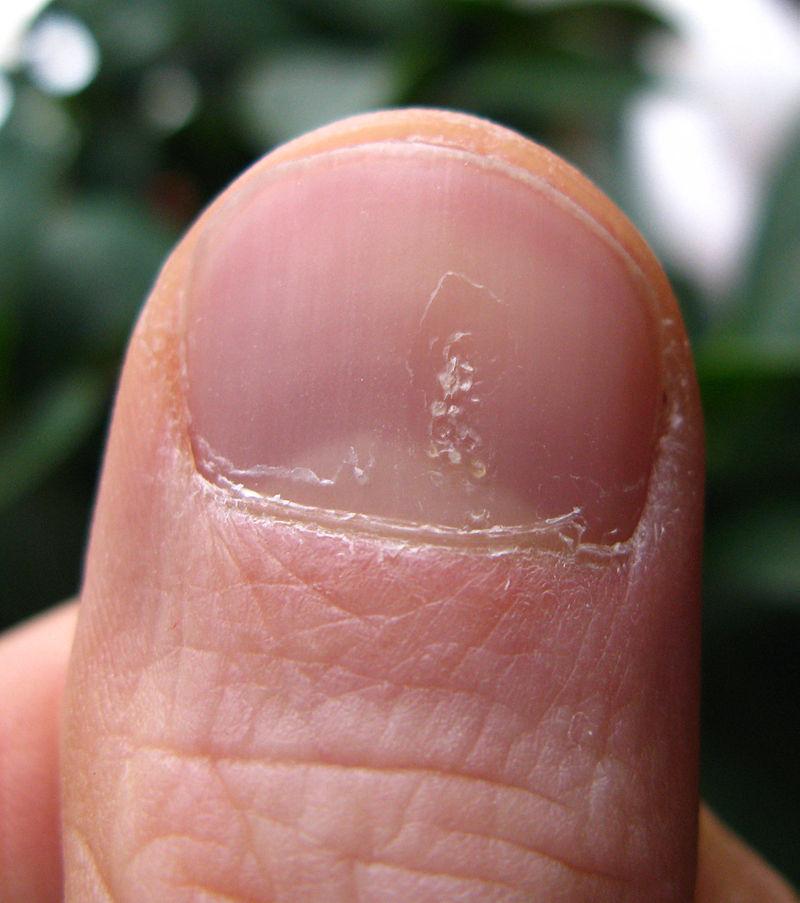 Ugly Nails:\